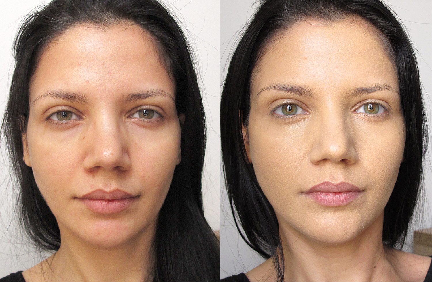 dermacol_before_after