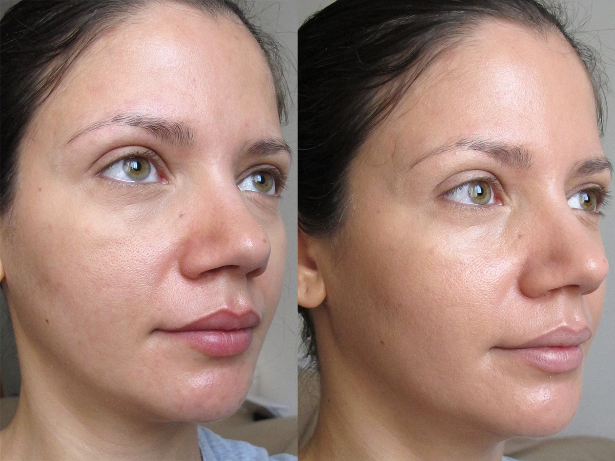 galenic teint lumiere before after